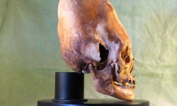 Elongated Skull - Cranial Deformation